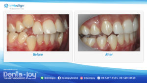 16_9 Before&After A02