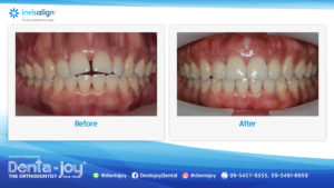 16_9 Before&After A05