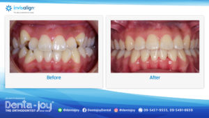 16_9 Before&After A06