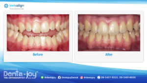 16_9 Before&After A07