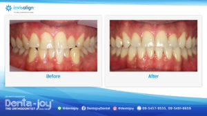 16_9 Before&After A08