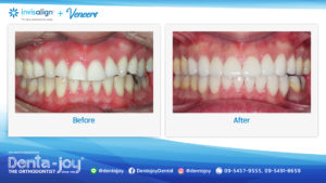 16_9 Before&After A10