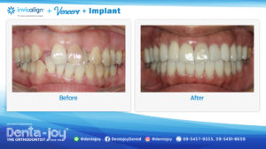 review-invisalign+veneers+implant01